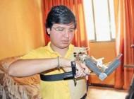 خوکفایی مردی برای دست قطع شده اش (عکس)
