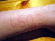 بیماری نادر پوستی و عجیب غریب (عکس)