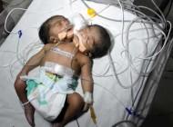 تصاویری از تولد نوزادی که دارای دو سر است !