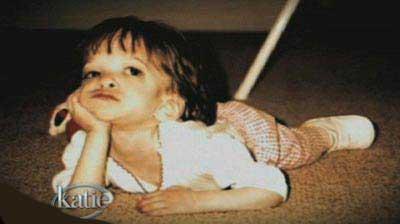 دختری که بخاطر یک بیماری دیگر رشد نکرد (عکس)