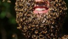 مردی با هزاران زنبور روی صورتش (عکس)