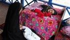 معلولیت عجیب و نادر در این دختر ایرانی (عکس)