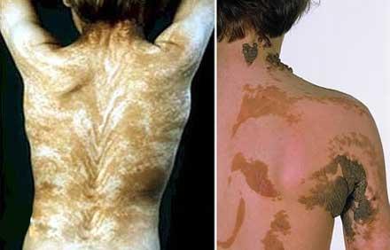 ناراحت کننده ترین و عجیب ترین بیماری های قرن  (عکس)