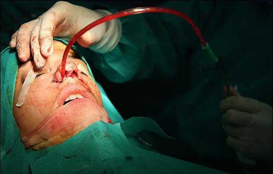 تصاویر وحشتناک از جراحی بینی