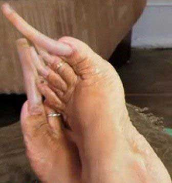 زنی که از ناخن های چندش آورش رضایت دارد (عکس)