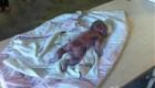 حواس پرتی پرستار باعث سوخاری شدن نوزاد شد (عکس)