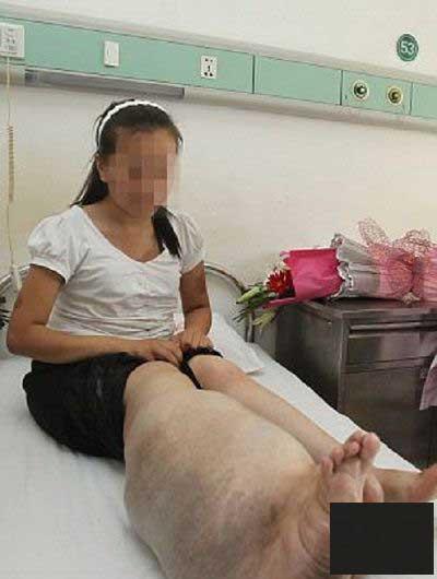 دختری که آرزو داشت پایش را قطع کنند (عکس)