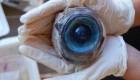کشف باور نکردنی ترین تخم چشم (عکس)