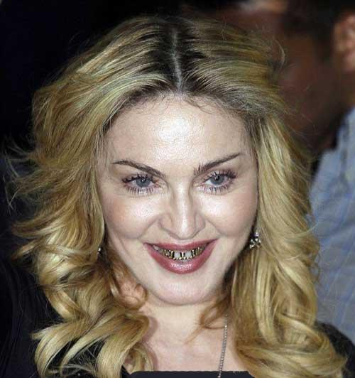 دندانهای سیم کشی عجیب مدونا