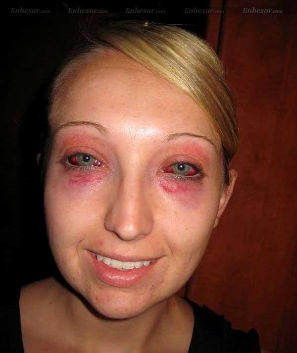 Кровавые глаза у девушки из-за нарушения правил погружения на глубину. дайв