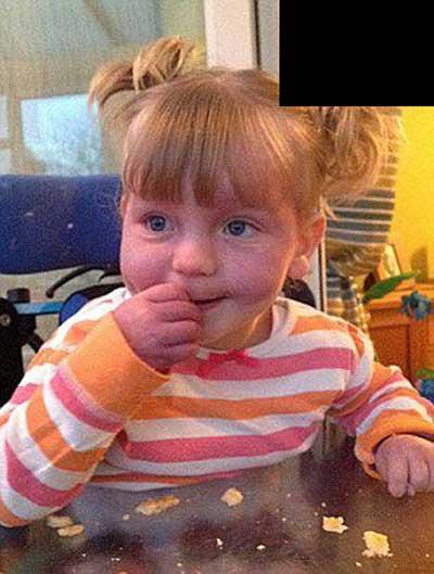 ماه گرفتگی عجیب بر روی صورت این دختر زیبا (عکس)