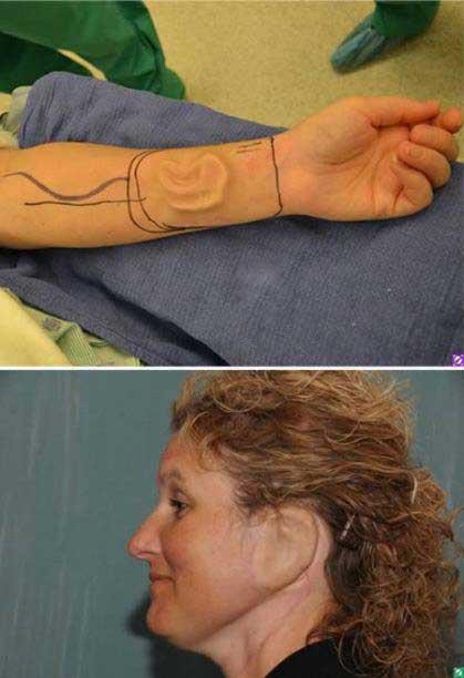 زنی که در دستش گوش اضافه رشد کرد (عکس)