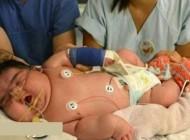 نوزادان عجیب و متفاوت در دنیا (عکس)