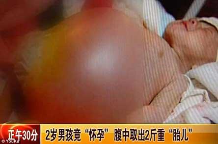 حاملگی جنجالی بچه 2 ساله (عکس)