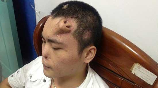 مرد چینی با یک بینی روی پیشانی (عکس)