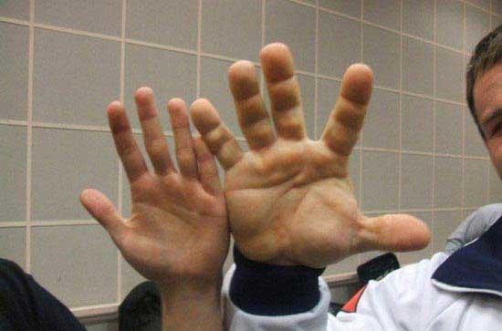 مردی با دست های غول مانند (عکس)