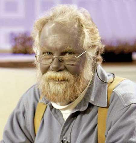 درگذشت مردی با پوست آبی (عکس)