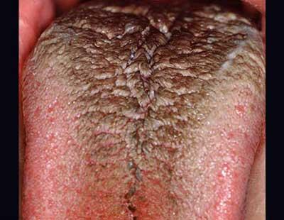 شناسایی بیماری های شایع دهانی