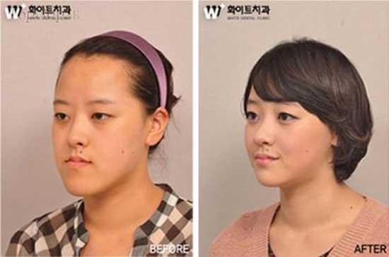 دخترانی که با جراحی زیبایی دنیایشان عوض شد (عکس)