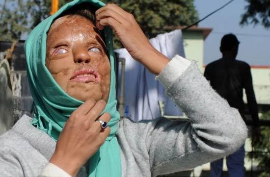 عکس های 18+ از دختر قربانی اسید پاشی انتقامی