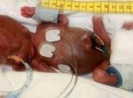 نوزادی که کوچکترین و زنده است (عکس)