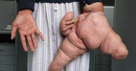 مردی با دست های عجیب و ترسناک (عکس)