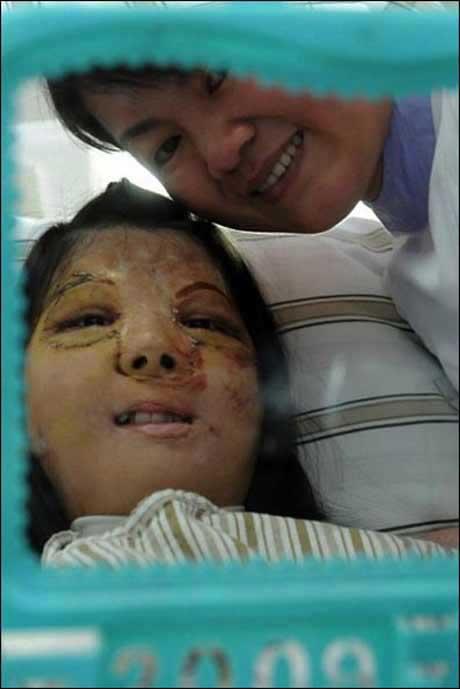 پیوند صورت دختر 17 ساله غوغا به پا کرد