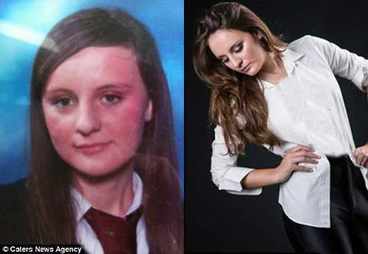 دختر شایسته 2013 که روزی زشت ترین دختر مدرسه بود