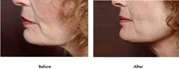 زیبایی صورت با طب سوزنی + عکس