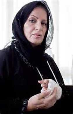 جراحی زیبایی بازیگران مشهور خارجی و ایرانی (+عکس)