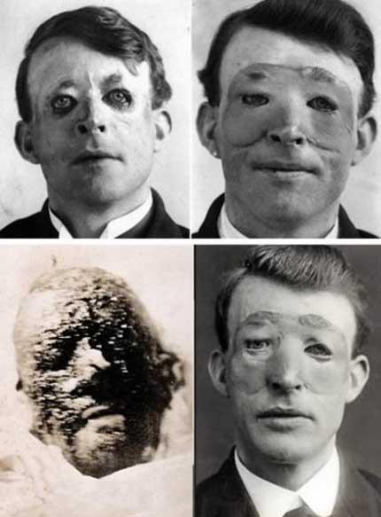 نخستین کسی که عمل جراحی پلاستیک کرد (عکس)