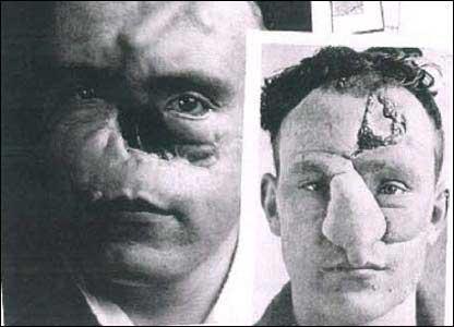 اولین کسی که در جهان بینی اش را عمل جراحی کرد