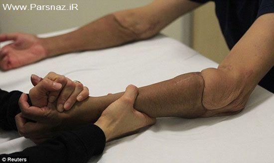 مردی با دست و بازوهای عجیب (عکس)