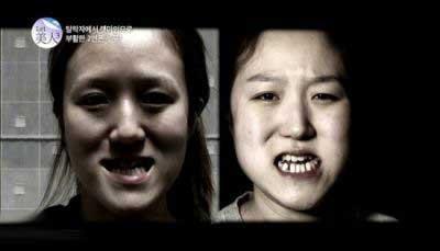 دو خواهر زشت با عمل زیبای زیبا شدند-غیر قابل باور