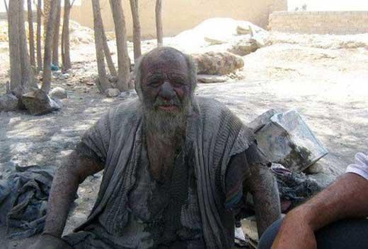 این فرد کثیف ترین مرد ایرانی شد + عکس