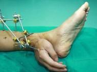 عمل عجیب پیوند دست به مچ پا (عکس)
