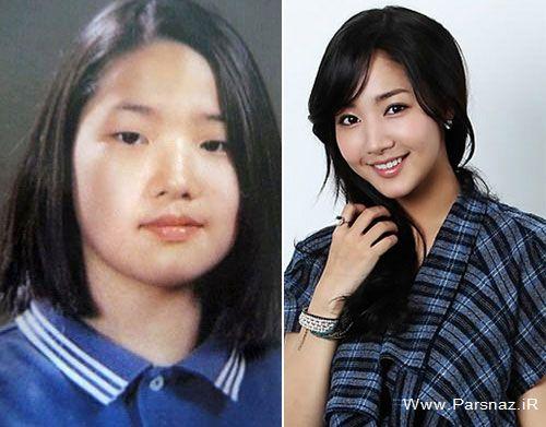 عمل زیبایی خواننده های کره ای