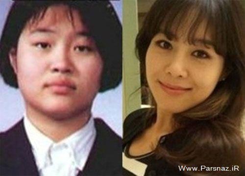 عمل زیبایی بازیگران کره ای