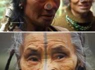 این زنان زشت ترین بینی دنیا را دارند +عکس