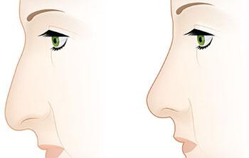 انواع بینی و عمل زیبایی بینی!