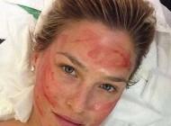 اقدام به زیبایی چهره با چندش آورین متد هالیوودی (عکس)