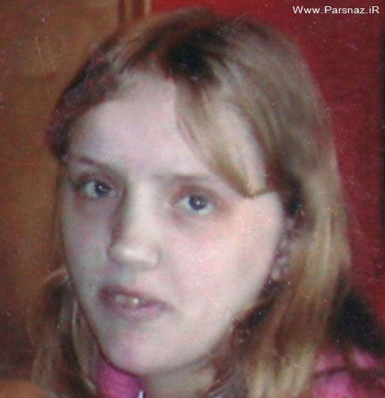 تاثیر الکل بر بدن و چهره این خانم 35 ساله +عکس