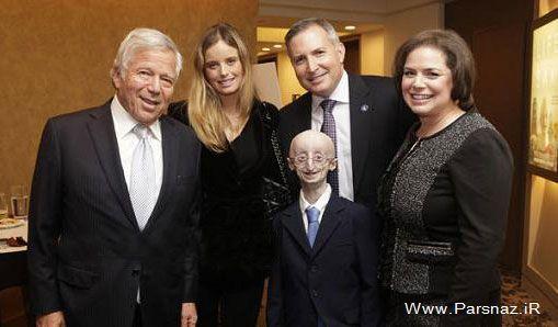 جوان 17 ساله مبتلا به سندروم پیری درگذشت (عکس)