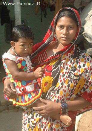 این مادر مجبور است دختر 19 ساله خود را بغل کند +عکس
