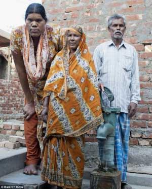 قد بلندترین خانم دنیا از مرگ نجات پیدا کرد! (عکس)
