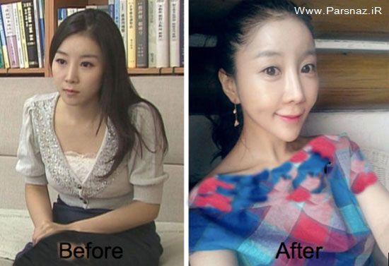 اقدام این خانم کره ای برای زیبا شدن (عکس)
