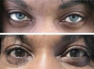 عمل زیبایی برای تغییر رنگ در چشم ها (+عکس)