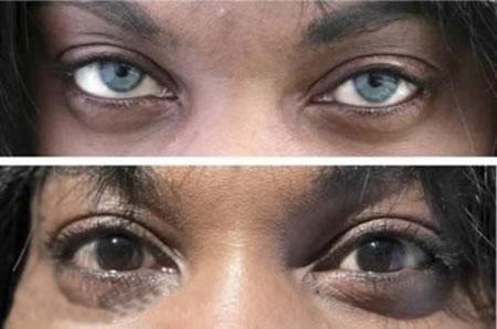 عمل زیبایی چشم عکس