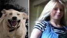 سگ های وحشی به این دختر حمله کردند (+عکس)
