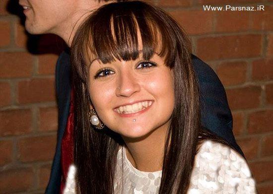 بیماری پوست اندازی وحشتناک این دختر جوان (عکس)